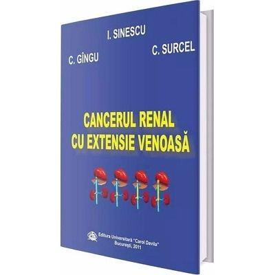 Cancerul renal cu extensie venoasa