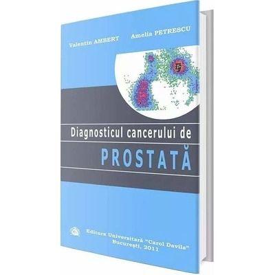 Diagnosticul cancerului de prostata