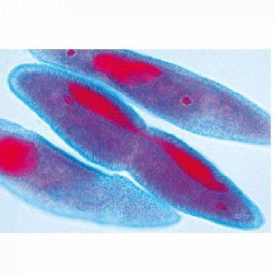 Sectiuni microscopice Protozoare