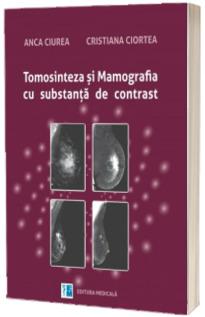 Tomosinteza si mamografia cu substanta de contrast