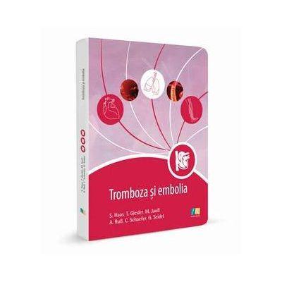 Tromboza si embolia - Editie de buzunar